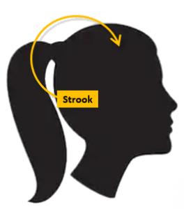 Ongeschoren haartransplantatie bij vrouwen