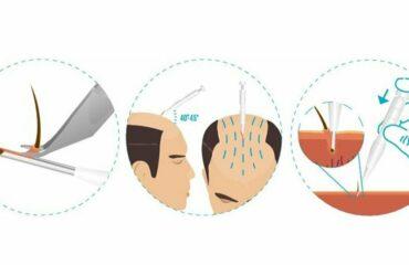 uitleg dhi haarimplantatie methode