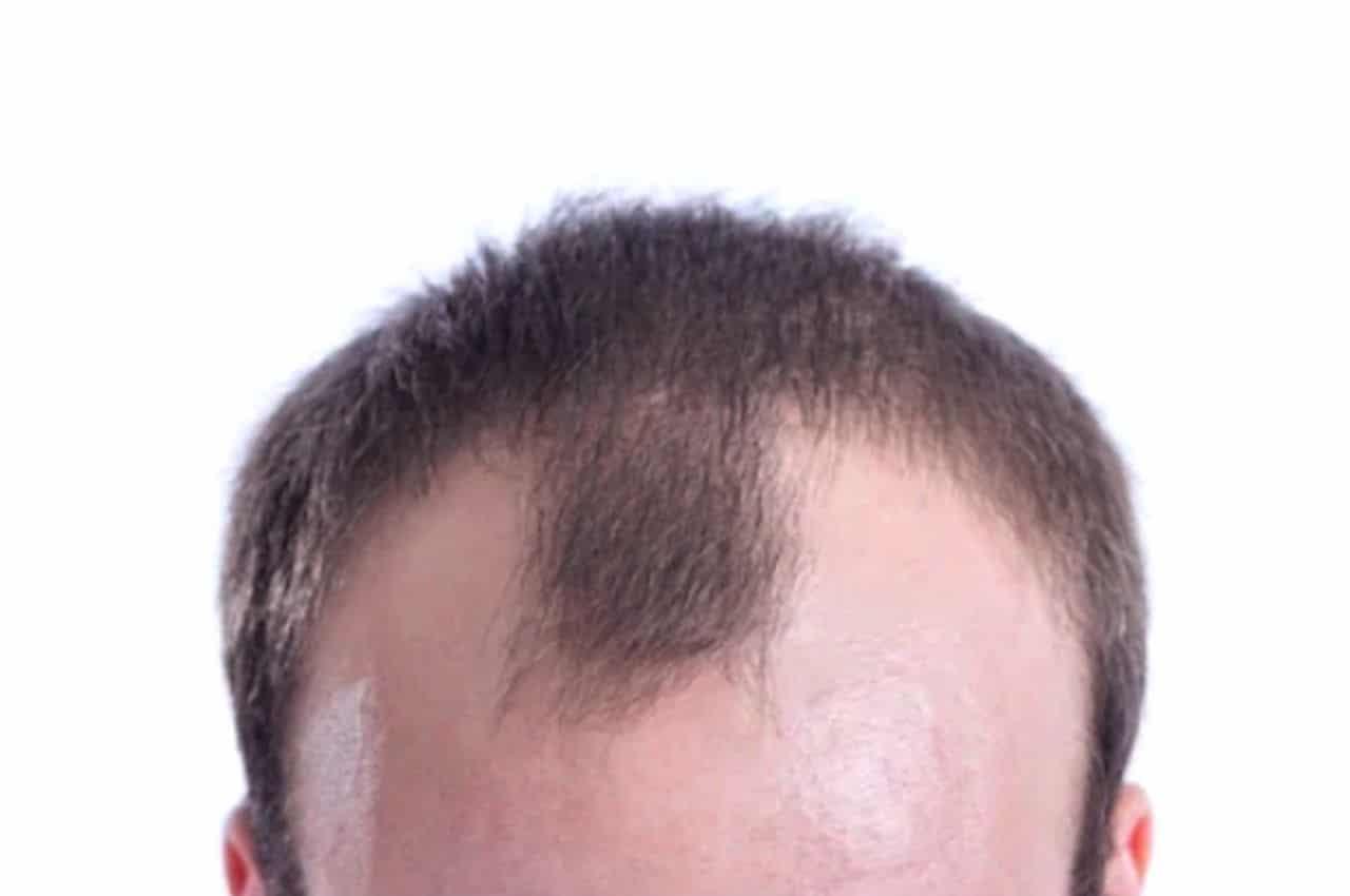 Haartransplantatie doen of niet
