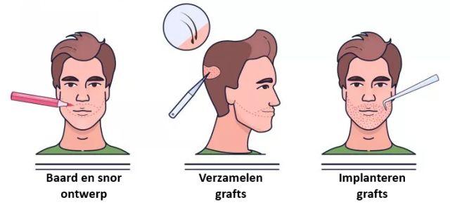 baardtranspantatie behandeling stappen
