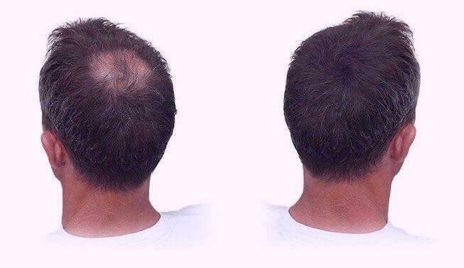 DHI Haartransplantatie